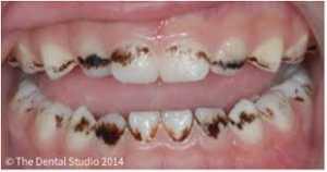 Manchas e Escurecimentos Dentais - Manchas Bactérias Cromogênicas