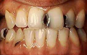 Manchas e Escurecimentos Dentais e Cárie Dentária