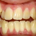Má Oclusão Dentária