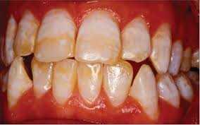 Manchas e Escurecimentos Dentais e Manchas de Fluorose Dental