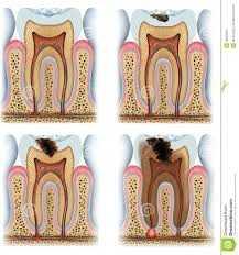 Flúor na Prevenção de Cáries Dentárias Zona Sul, Flúor na Prevenção de Cáries Dentárias Zona Sul SP