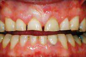 Dentes Desgastados por Bruxismo Zona Sul SP, Clínica Odontológica Zona Sul SP, Dentista Zona Sul SP