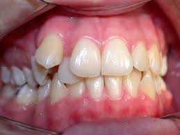 Tratamento de Dentes Mal Alinhados Zona Sul, Tratamento de Dentes Mal Alinhados na Zona Sul, Tratamento de Dentes Mal Alinhados Zona Sul SP, Tratamento de Dentes Mal Alinhados na Zona Sul SP,