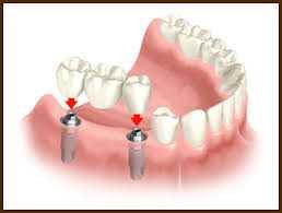 Implantes Dentários, Implantes Dentários São Paulo, Implantes Dentários em São Paulo, Implantes Dentários SP, Implantes Dentários em SP, Implantes Dentários Zona Sul, Implantes Dentários na Zona Sul, Implantes Dentários Zona Sul SP, Implantes Dentários na Zona Sul SP, Implantes Dentários Zona Sul de SP, Implantes Dentários na Zona Sul de SP, Implantes Dentários Zona Sul de São Paulo, Implantes Dentários na Zona Sul de São Paulo,