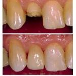Próteses Dentárias Fixas São Paulo, PrótesesDentárias Fixas em São Paulo, PrótesesDentárias Fixas SP, PrótesesDentárias Fixas em SP,Próteses Dentárias Fixas Zona Sul,Próteses Dentárias Fixas na Zona Sul,Próteses Dentárias Fixas Zona Sul SP,Próteses Dentárias Fixas na Zona Sul SP,Próteses Dentárias Fixas Zona Sul de SP,Próteses Dentárias Fixas na Zona Sul de SP,Próteses Dentárias Fixas na Zona Sul São Paulo,Próteses Dentárias Fixas na Zona Sul de São Paulo,