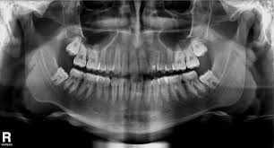 Ortodontia Zona Sul, Ortodontia Zona Sul, Ortodontia Zona Sul, Ortodontia na Zona Sul, Ortodontia na Zona Sul, Ortodontia na Zona Sul, Ortodontia Zona Sul SP, Ortodontia Zona Sul SP, Ortodontia Zona Sul SP, Ortodontia na Zona Sul SP, Ortodontia na Zona Sul SP, Ortodontia na Zona Sul SP, Ortodontia Zona Sul de SP, Ortodontia Zona Sul de SP, Ortodontia Zona Sul de SP, Ortodontia na Zona Sul de SP, Ortodontia na Zona Sul de SP, Ortodontia na Zona Sul de SP, Ortodontia, Ortodontista, Aparelhos Ortodônticos, Especialista em Ortodontia, Tratamento Ortodôntico, Especialista em Tratamento Ortodôntico, Aparelhos Ortodônticos, Aparelhos Ortodônticos Fixos, Aparelhos Ortodônticos Móveis, Aparelhos Ortodônticos Extra-Orais, Especialista em Aparelhos Ortodônticos, Aparelhos Ortodônticos Auto-Ligados, Especialista em Aparelhos Auto-Ligados, Aparelhos Ortodônticos Estéticos, Especialista em Aparelhos Ortodônticos Estéticos, Aparelhos Ortodônticos da Cor do Dente, Aparelhos Ortodônticos Cerâmicos, Aparelhos Ortodônticos Invisíveis, Aparelhos Ortodônticos Transparentes, Aparelhos Ortodônticos de Porcelana, Aparelhos Dentários, Especialista em Aparelhos Dentários, Aparelhos Dentários Auto-Ligados, Especialista em Aparelhos Dentários, Aparelhos Dentários Estéticos, Especialista em Aparelhos Dentários Estéticos, Aparelhos Dentários da Cor do Dente, Aparelhos Dentários Cerâmicos, Aparelhos Dentários Invisíveis, Aparelhos Dentários Transparentes, Aparelhos Dentários de Porcelana, Mordida Aberta, Mordida Profunda, Sobremordida, Mordida Cruzada, Apinhamento Dental, Alinhamento Dental, Oclusão Dentária, Má Oclusão Dentária, Tratamento da Mordida Aberta, Tratamento da Mordida Profunda, Tratamento da Sobremordida, Tratamento da Mordida Cruzada Zona Sul de SP, Tratamento do Apinhamento Dental, Tratamento do Alinhamento Dental, Tratamento da Oclusão Dentária, Tratamento da Má Oclusão Dentária, Oclusão Dentária, Fechamento de Diastemas, Dentes Tortos, Dentes Encavalados, Dentes Apinhados, Dentes