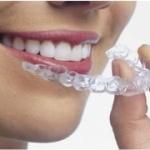 Clareamento Dental, Clareamento Dental Zona Sul, Clareamento Dental na Zona Sul, Clareamento Dental Zona Sul SP, Clareamento Dental na Zona Sul SP, Clareamento Dental Zona Sul de SP, Clareamento Dental na Zona Sul de SP