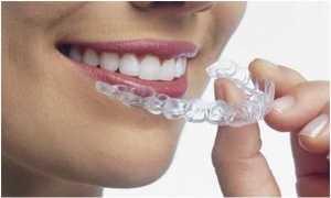Clareamento Dental Caseiro Zona Sul SP, Clínica Odontológica Zona Sul SP, Dentista Zona Sul SP