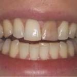 Manchas e Escurecimentos Dentais
