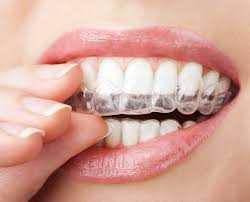 Moldeira para Clareamento Dental Caseiro Zona Sul SP, Clínica Odontológica Zona Sul SP, Dentista Zona Sul SP