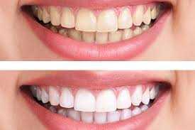 Sessões de Retoque de Clareamento Dental Zona Sul SP, Clínica Odontológica Zona Sul SP, Dentista Zona Sul SP