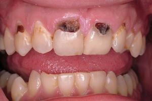 Cárie Dentária Zona Sul SP, Cárie Dentária na Zona Sul SP,