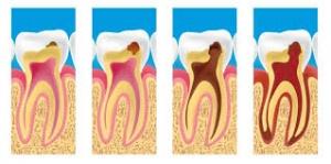 Evolução da Cárie Dentária Zona Sul SP, Evolução da Cárie Dentária na Zona Sul SP