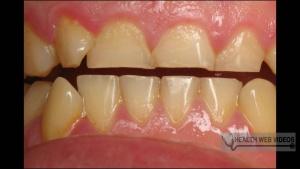 Hábito de Cerrar os Dentes à Noite Zona Sul SP, Hábito de Cerrar os Dentes à Noite na Zona Sul SP,
