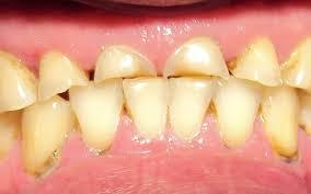 Tratamento do Bruxismo Zona Sul SP, Dentes Desgastados pelo Bruxismo