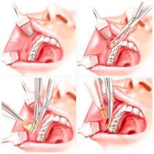 Clínica Odontológica Zona Sul SP, Dentista Zona Sul SP, Cirurgia de Bichectomia Zona Sul SP
