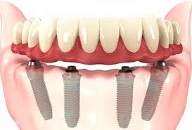 Dentaduras sobre ImplantesZona Sul,Dentaduras sobre Implantesna Zona Sul,Dentaduras sobre ImplantesZona Sul SP,Dentaduras sobre Implantesna Zona Sul SP,Dentaduras sobre ImplantesZona Sul de SP,Dentaduras sobre Implantesna Zona Sul de SP,Dentaduras sobre ImplantesZona Sul de São Paulo,Dentaduras sobre Implantesna Zona Sul de São Paulo,Dentaduras sobre ImplantesSP Zona Sul,Dentaduras sobre ImplantesSP na Zona Sul,Dentaduras sobre ImplantesSão Paulo Zona Sul,Dentaduras sobre ImplantesSão Paulo na Zona Sul,