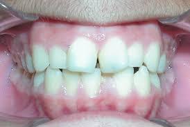 Odontologia Estética, Odontologia Estética Zona Sul,Odontologia Estética Zona Sul SP, Odontologia Estética SP, Odontologia Estética São Paulo, Lentes de Contato Dentais Zona Sul, Lentes de Contato Dentais Zona Sul SP,