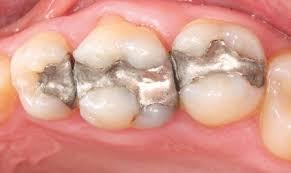 Odontologia Estética, Odontologia Estética Zona Sul,Odontologia Estética Zona Sul SP, Odontologia Estética SP, Odontologia Estética São Paulo,