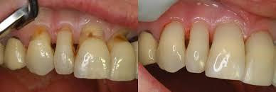 Tratamento da Hipersensibilidade Dentinária Zona Sul , Tratamento da Hipersensibilidade Dentinária Zona Sul SP, Tratamento da Hipersensibilidade Dentinária SP, Tratamento da Hipersensibilidade Dentinária São Paulo